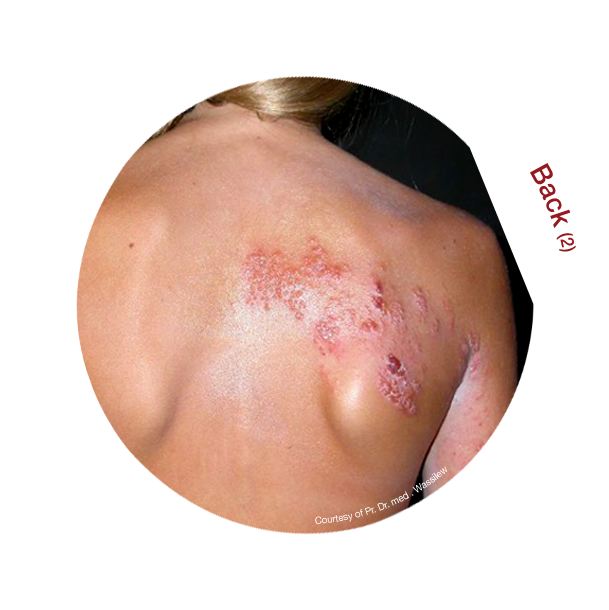 Shingles Rash Back