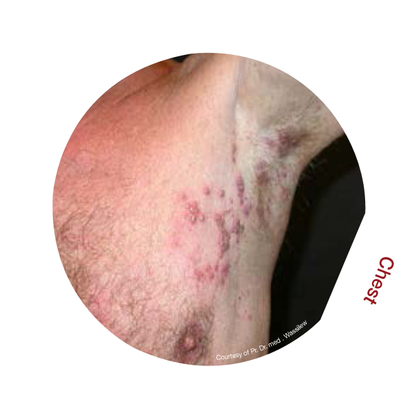 Shingles Rash Chest