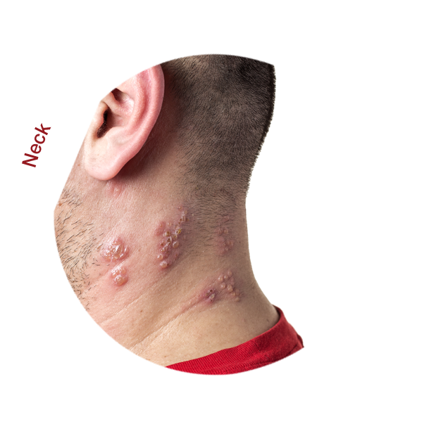 Shingles Rash Neck
