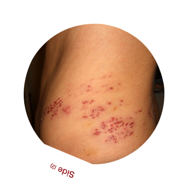 Shingles Rash Side